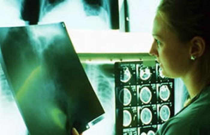 دراسة: الأشعة المقطعية خطر يهدد الأطفال والمراهقين