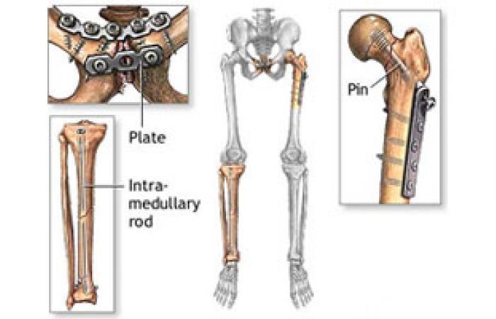 """""""جراحة العظام المصرية"""" تناقش أحدث تقنيات تطويل الأقدام"""