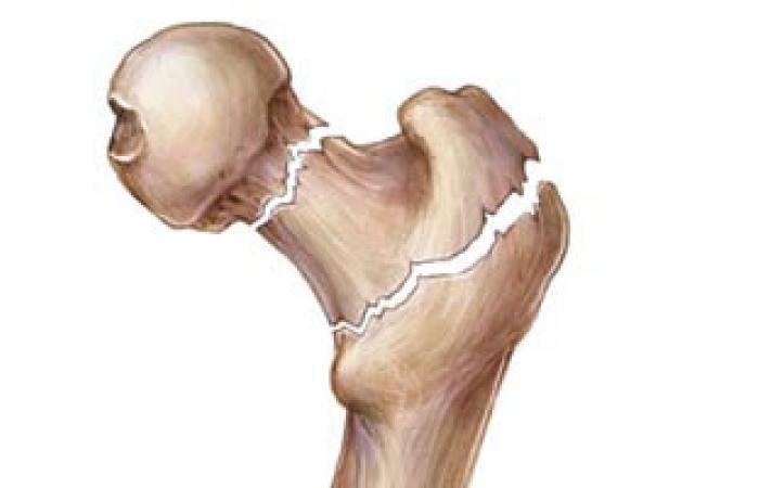 أسباب إصابة المصريين بهشاشة العظام