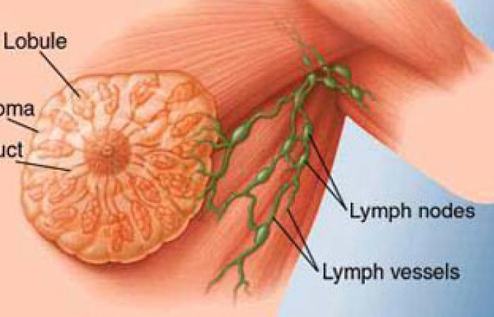 زيادة فرصة الإصابة بسرطان الثدى بعد الشفاء للسيدات الأقل من 40 عاما
