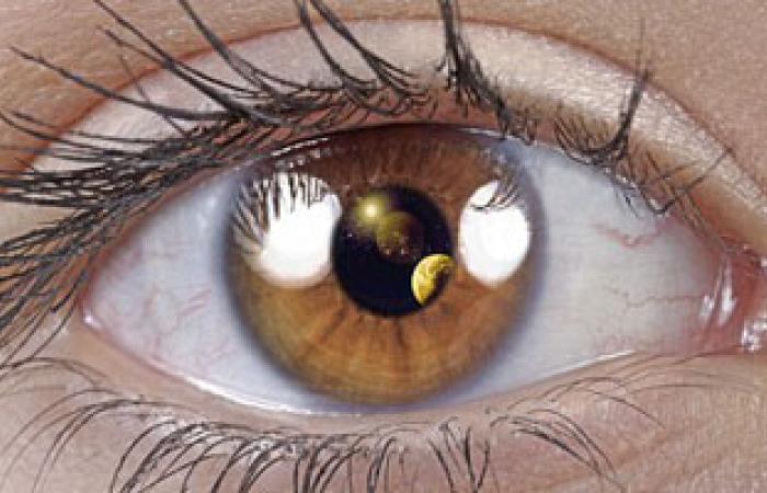 """""""تصوير شبكية العين"""".. أحدث وسيلة لتوقع خطر الإصابة بالسكتة الدماغية"""