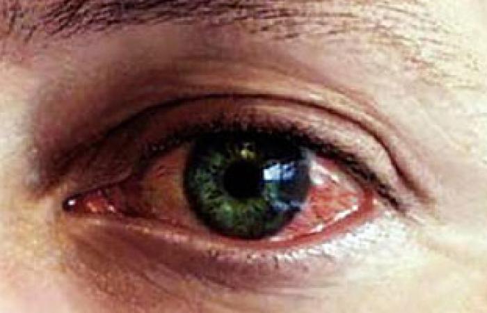 أستاذ طب عيون: يوضح أسباب ضعف العيون الملونة عن غيرها