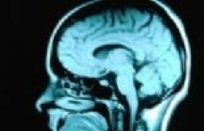 تصنيع مخ انسانى مصغر فى بيئة معملية