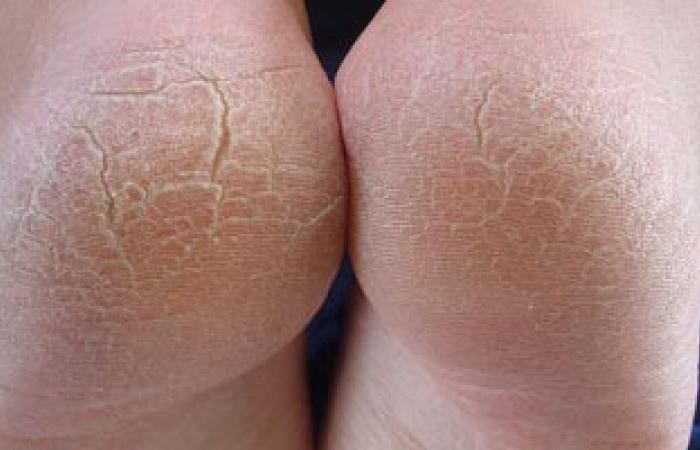 تجفيف أصابع القدمين أهم طرق علاج تنيا الأقدام