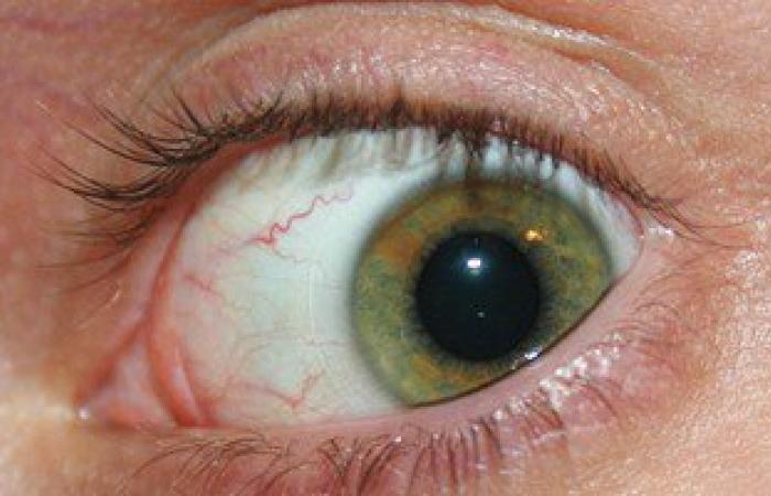 """لمرضى جفاف العين.. تعرف على شروط إجراء """"الليزر"""" لتصحيح الإبصار"""