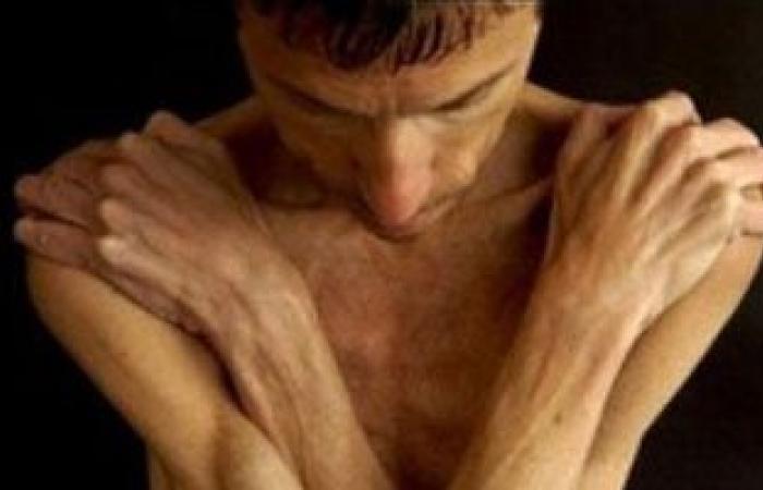 زيادة الوزن بالكورتيزون تدمر الجهاز المناعى وتسبب السكر وضغط الدم