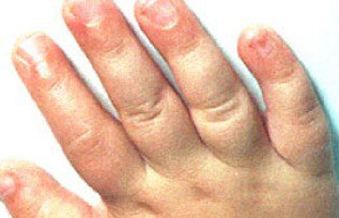 أسباب وطرق علاج تورم الجلد والأطراف فى فصل الشتاء