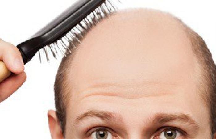 عملية زراعة الشعر لعلاج الصلع تتم على مراحل