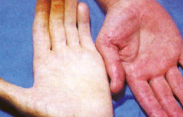 التوصل لعلاج جينى لمرض فقر الدم المنجلى لدى الأطفال