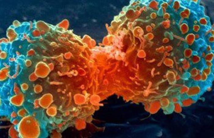أستاذ أورام: سرطان البروستاتا يتغذى على هرمون الذكورة