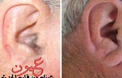 شعر الاذن علامة تحذير مهمة ،فماذا يعني؟