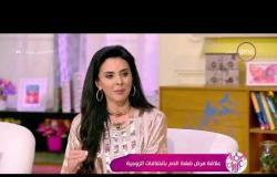 السفيرة عزيزة - د/ أحمد العسكري - يوضح تأثير التدخين والسمنة المفرطة على إرتفاع ضغط الدم