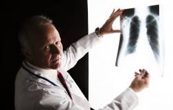 جوجل تتفوق على أطباء الأشعة في الكشف عن سرطان الرئة