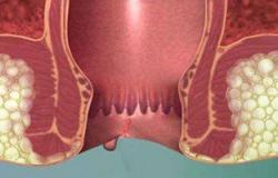 لمريض البواسير.. العلاج التحفظى أفضل الوسائل العلاجية