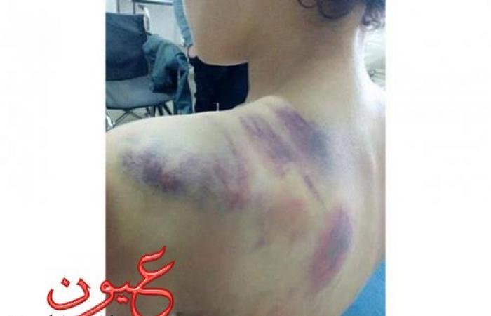 """الطفل """"آسر"""" ضحية تعذيب زوجة الأب: """"منعت عني الأكل والشرب"""""""