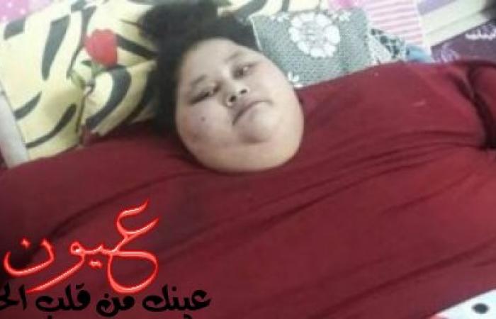 النظام الغذائي الذي جعل الفتاة المصرية أضخم فتاة في العالم تفقد 30 كيلوا من وزنها