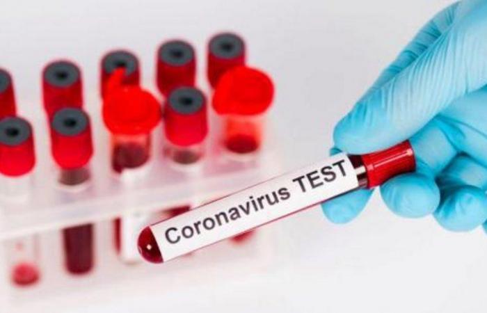 """الكويت تسجل 682 إصابة جديدة بفيروس """"كورونا"""" وحالتي وفاة"""