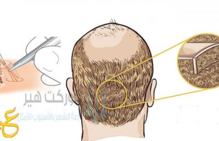 عملية زرع الشعر خطوة بخطوة