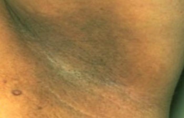 وصفة سهلة وغير مكلفة لتبيض المناطق الحساسة وإزالة الجلد الميت والأوساخ