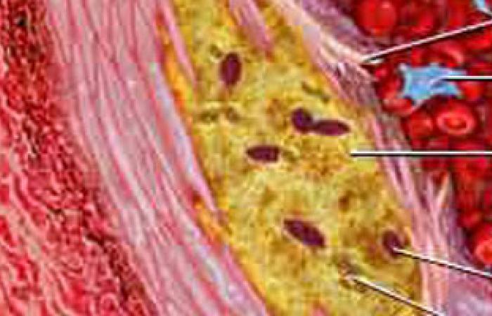 دراسة: أدوية الكولسترول ترفع فرص الإصابة بمرض السكر