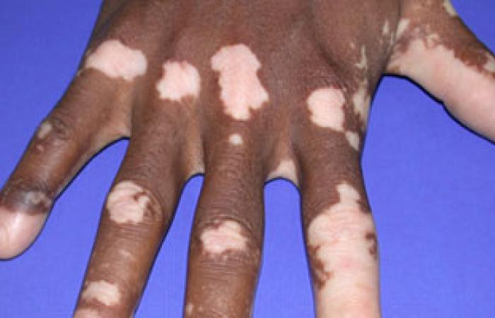 هل تفيد عملية حقن الخلايا الصبغية فى علاج مرض البهاق