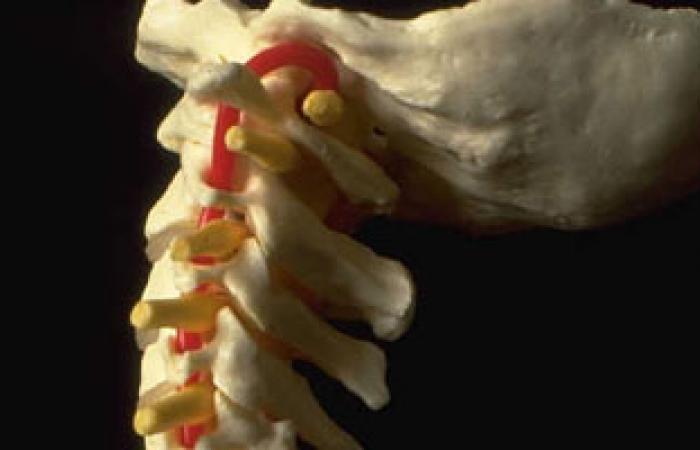 """تثبيت الفقرات بدون فتح جراحى """"تقنية جديدة"""" فى علاج إصابات الفقرات"""