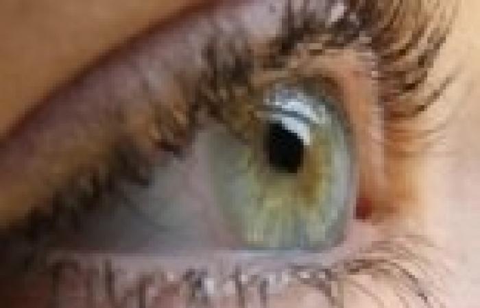 «السكر»يهدد 3.5 مليون مصرى بـ«العمى»