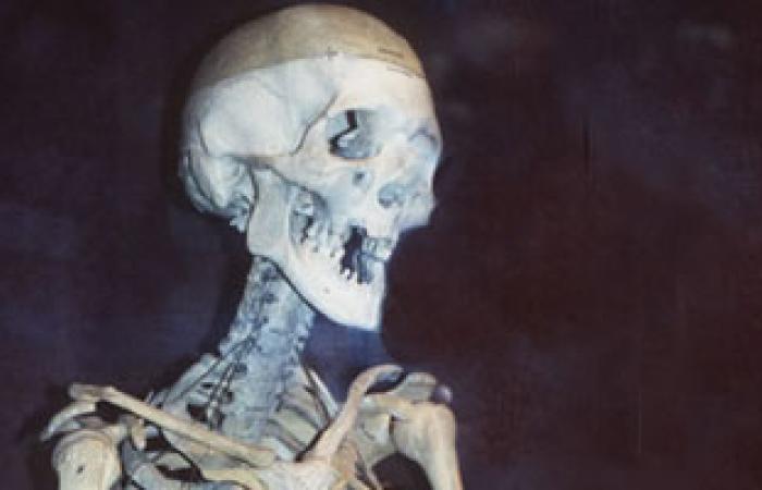 الخلل فى الساعة البيولوجية يحفز الإصابة بالتهاب المفاصل العظمى