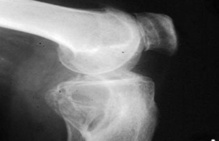 لماذا يصاب كبار السن بخشونة الركبة؟