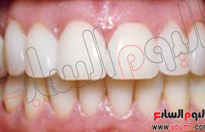 كيفية علاج تباعد المسافات بين الأسنان الأمامية