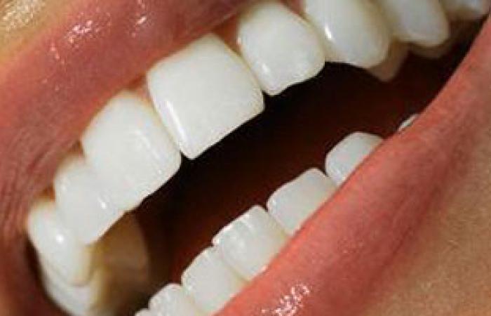 معوقات استخدام الليزر لتبييض الأسنان