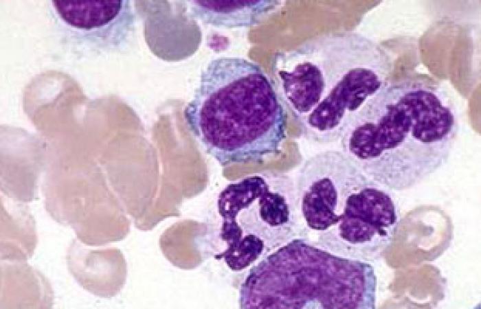 كيف يمكن اكتشاف مرض اللوكيميا وهل يمكن علاجه؟