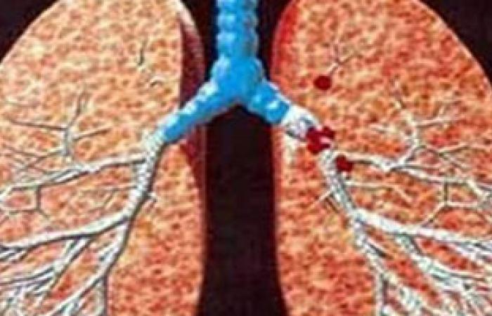 دراسة: الالتهاب الرئوى أخطر ما يواجهه الأطفال