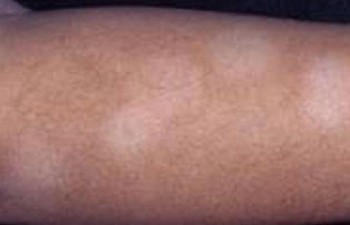 ما طرق علاج مرض النخالة الوردية؟