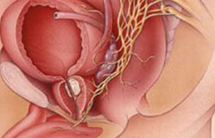 سرطان البروستاتا السبب الثالث للوفاة بين الرجال فى فرنسا