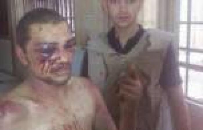 «العفو الدولية» تطالب بالتحقيق في أعمال تعذيب ارتكبها أنصار مرسي