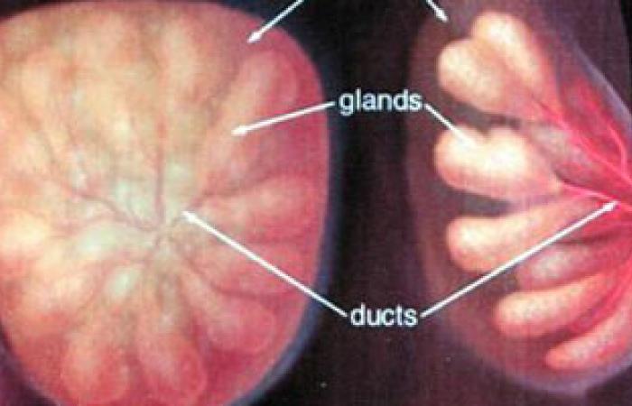 بعض العقاقير المعالجة للضغط قد تسبب سرطان الثدى