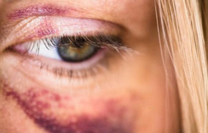 مرضى الالتهاب الفطرى يجدون العلاج فى السودان