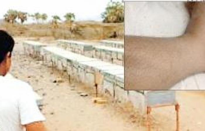 موظفون يحصلون على إجازات مرضية وهمية بـ «لسعات النحل»