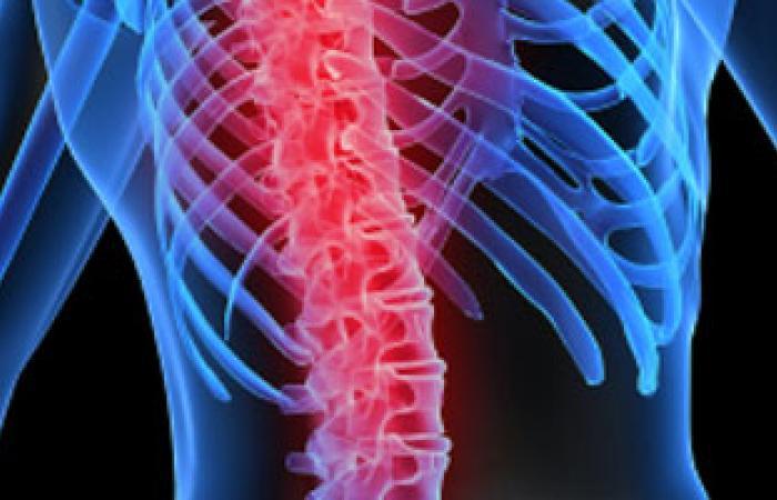 الأشعة المقطعية هى الدليل القاطع لبيان أسباب احتكاك الركبة