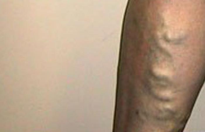 هل الإصابة بدوالى الساقين أمر وراثى أثناء الحمل؟