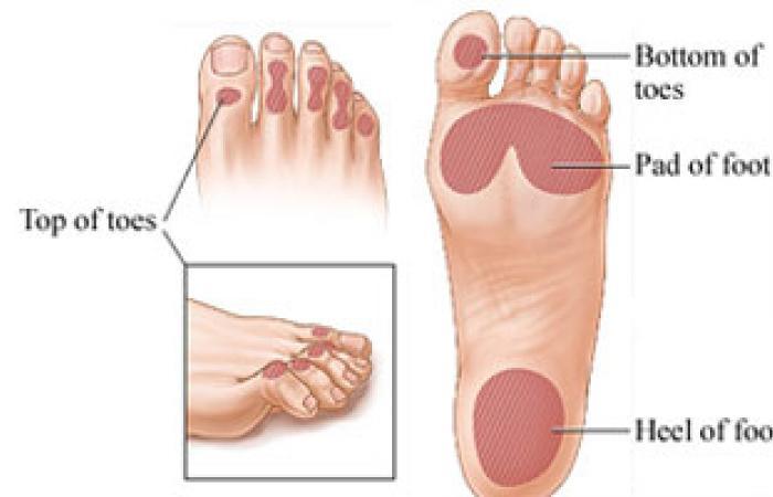 نصائح طبية: التقصير أو الحلق بالحج يقيك مرض القدم السكرى
