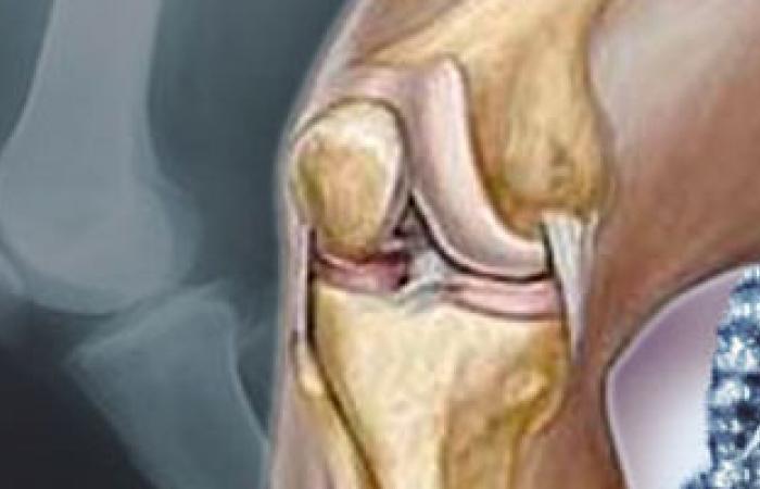 السمنة الزائدة تؤدى إلى خشونة الركبة والمفاصل