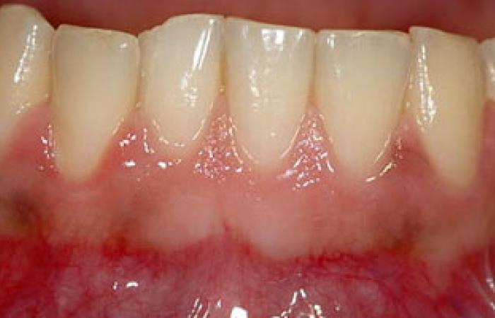 الإصابة بمرض السكر تسبب زوبان الأسنان وضعف المناعة
