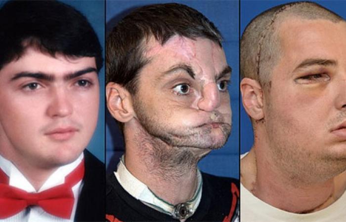 بالصور.. شاهد أصعب عمليات زراعة الوجه بالعالم