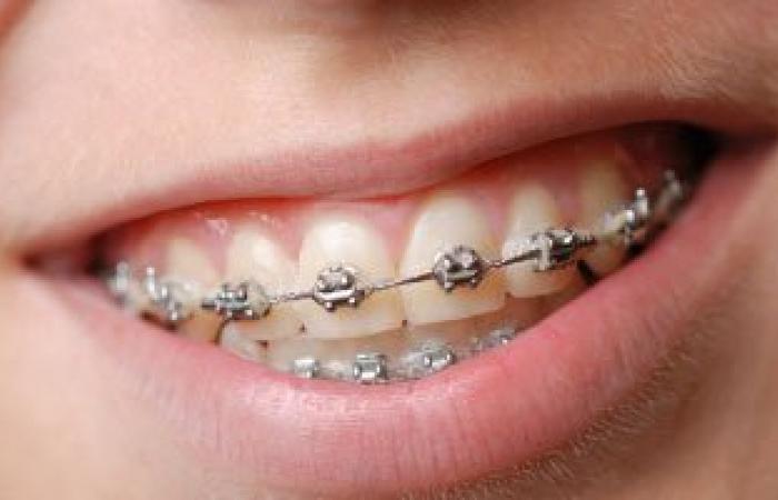 أهم الأعراض المصاحبة لتقويم الأسنان وطرق علاجها