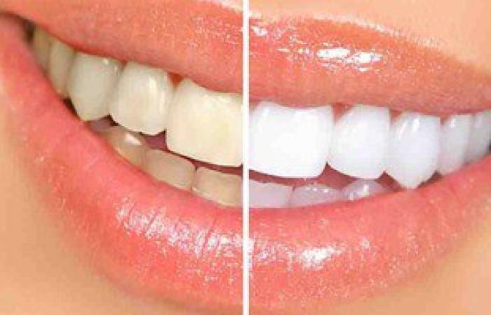 7 نصائح ضرورية للتخلص من اصفرار الأسنان