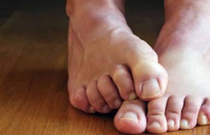 تعرف على 5 أضرار للسير حافى القدمين