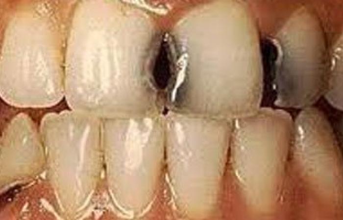 فى اليوم العالمى للأسنان.. الأطفال أكثر عرضة للإصابة بالتسوس