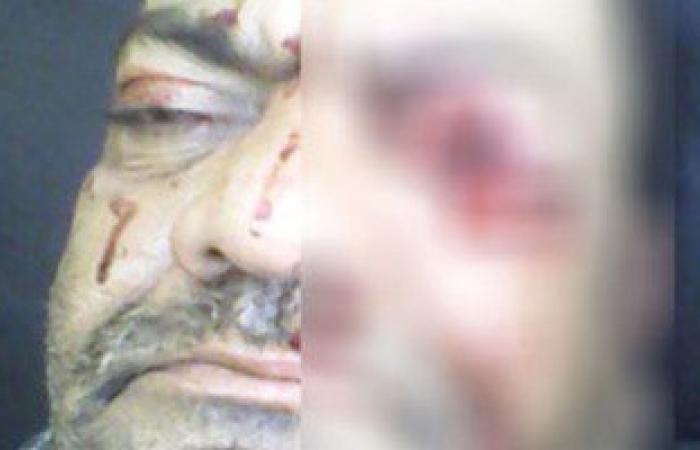 فصل طالب إعدادى بالإسكندرية اعتدى على مدرسه بالضرب وأصاب عينه